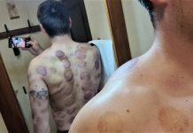 Cum arată spatele lui Alin Firfirică, atlet calificat la JO - după terapia cu ventuze și laser!